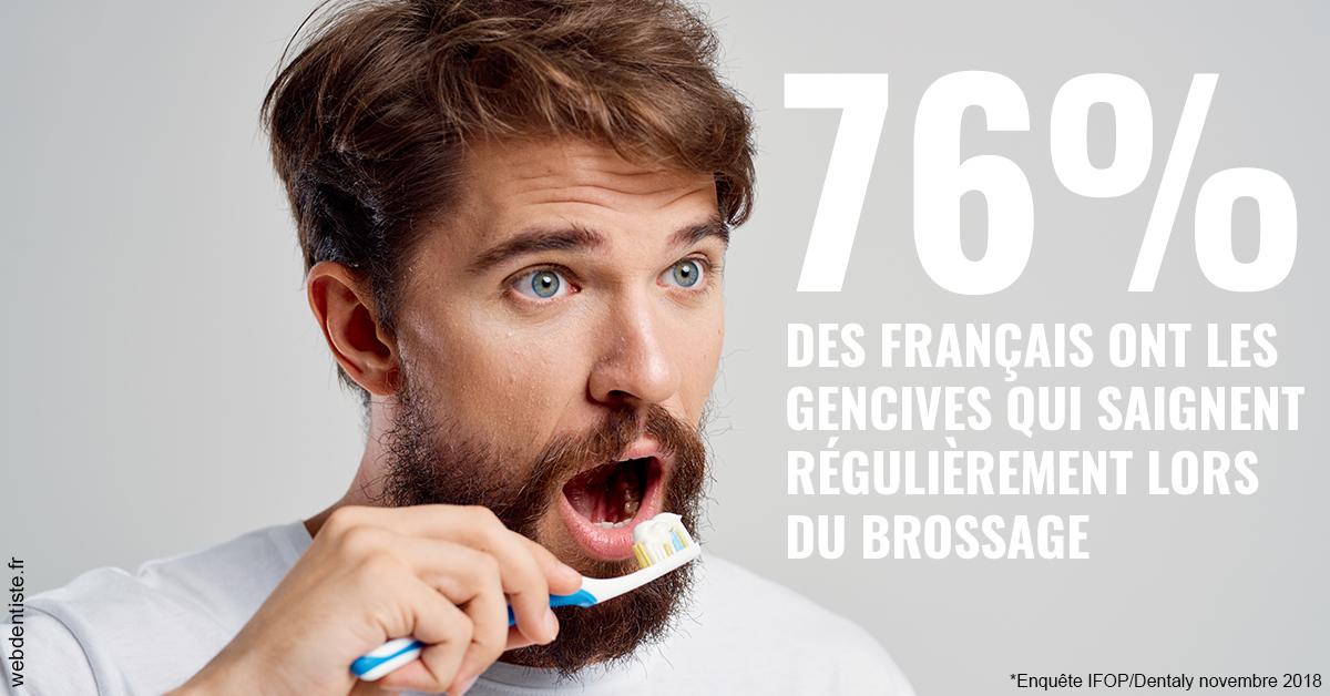 https://dr-bricout-anne-emmanuelle.chirurgiens-dentistes.fr/76% des Français 2
