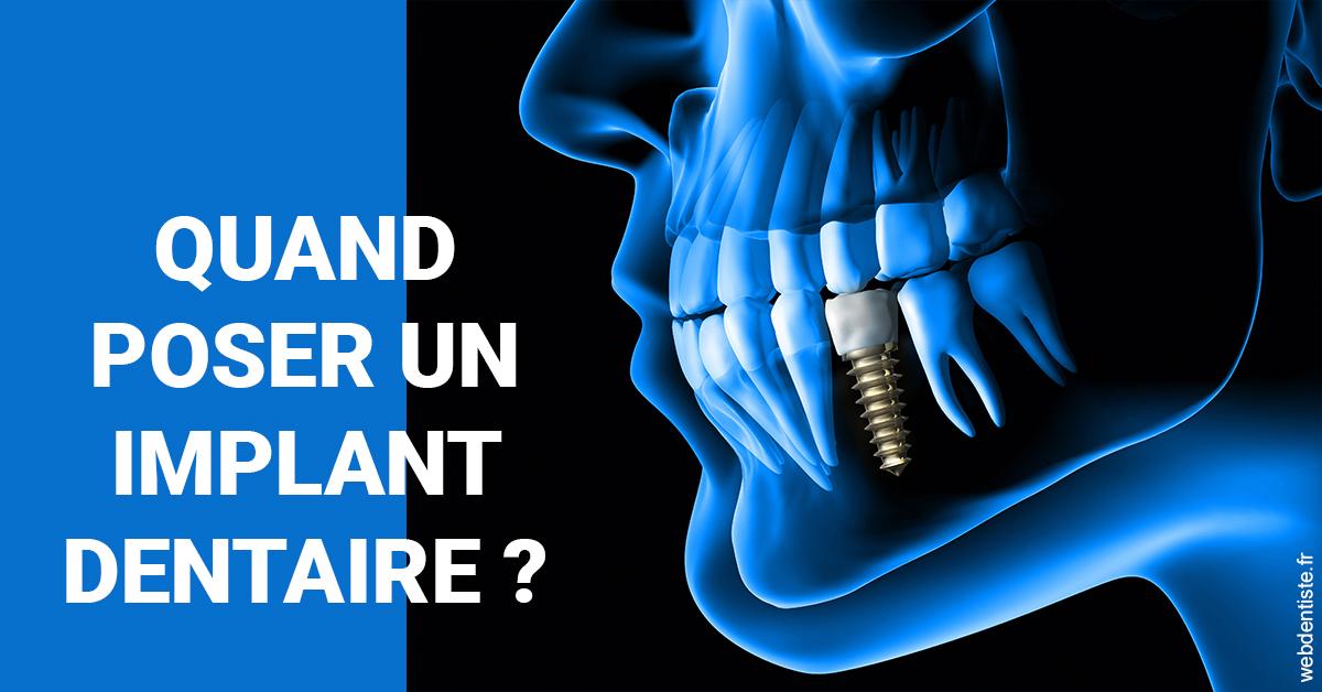 https://dr-bricout-anne-emmanuelle.chirurgiens-dentistes.fr/Les implants 1